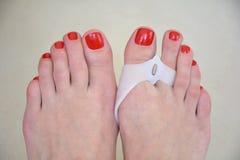 Os pés que vestem almofadas ortopédicas do valgus do hallux no polegar toes Imagens de Stock Royalty Free