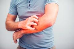 Os povos riscam o comichão com mão, cotovelo, itching, cuidados médicos fotografia de stock