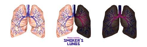 Os pulmões do ` s do fumador ajustaram-se em baixo poli Pulmões saudáveis, pulmões doentes, cance ilustração royalty free