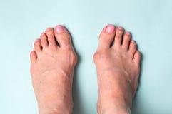 Os sur le pied La maladie de valgus de Hallux Image stock
