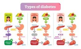 Os tipos de ilustração médica simples do vetor do diabetes planejam Diagrama da informação dos cuidados médicos ilustração royalty free
