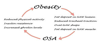 OSA and obesity. Relationship between OSA and obesity Stock Photos