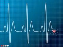Oscurità medica di battimento di cuore Fotografie Stock Libere da Diritti