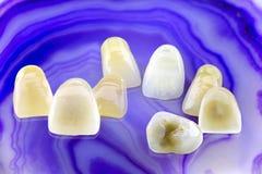 Osiem ceramicznych dentures Obraz Royalty Free
