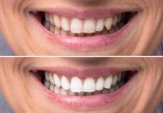 Osoba zęby Przed i po dobieraniem obrazy royalty free