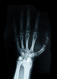 Ossa carpali X Ray umana immagine stock
