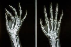 Ossa delle mani umane Fotografia Stock
