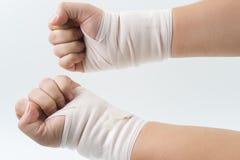 Osso de mão quebrado do acidente com tala do braço Imagem de Stock