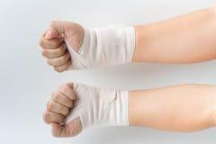 Osso de mão quebrado do acidente com tala do braço Fotografia de Stock