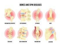 Osso e malattie scheletriche fissati con i nomi medici illustrazione di stock