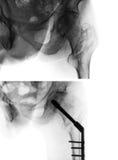 Osso Intertrochanteric da coxa do fêmur da fratura Raio X do quadril e da comparação no meio antes da imagem superior da cirurgia fotos de stock