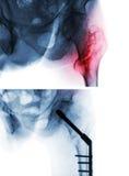 Osso Intertrochanteric da coxa do fêmur da fratura Raio X do quadril e da comparação no meio antes da imagem superior da cirurgia Imagens de Stock Royalty Free