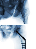 Osso Intertrochanteric da coxa do fêmur da fratura Raio X do quadril e da comparação no meio antes da imagem superior da cirurgia Foto de Stock Royalty Free