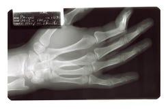 Osso quebrado raio X do dedo Imagem de Stock Royalty Free