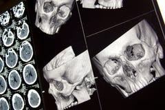 Ossos e cérebro principais, CT no traumatismo Imagem de Stock