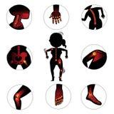 Ossos e junções Fotos de Stock