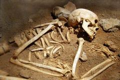 Ossos humanos Imagens de Stock Royalty Free