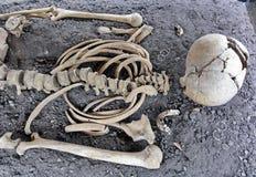 Ossos humanos do crânio e do esqueleto Imagens de Stock