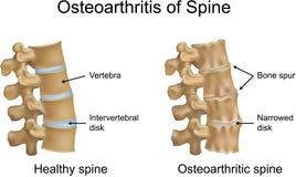 Ostéoarthrite d'épine Image stock
