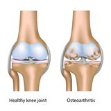 Ostéoarthrite d'articulation de genou Image libre de droits
