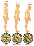 Ostéoporose 3 Image libre de droits