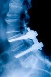 Ostéosynthèse Photographie stock libre de droits