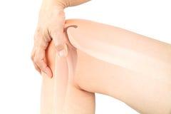 Osteoalgia del ginocchio immagini stock