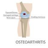 osteoarthritis Arkivbilder