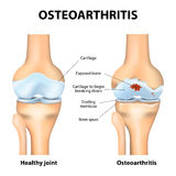 Osteoarthritis or arthritis Royalty Free Stock Photography