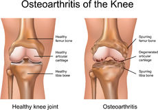 Osteoarthritis av knäet stock illustrationer