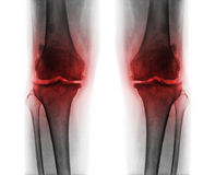 Osteoarthritis both knee . Film x-ray AP & x28; anterior - posterior & x29; of knee show narrow joint space . osteophyte & x28; spur & x29; . subcondral royalty free stock image