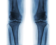Osteoarthritis both knee . Film x-ray AP & x28; anterior - posterior & x29; of knee show narrow joint space . osteophyte & x28; spur & x29; . subcondral stock photography
