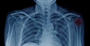 Osteoarthritis head of humerus. Or frozen shoulder stock images