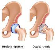 Osteoarthritis of hip joint Royalty Free Stock Photos