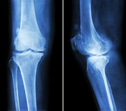 Osteoarthritis knee . film x-ray knee ( anterior - posterior and lateral view ) show narrow joint space , osteophyte ( spur ) ,. Subcondral sclerosis due to stock photos