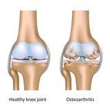 Osteoarthritis of knee joint stock illustration