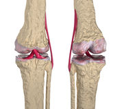 Osteoarthritis : Knee joint with ligaments and car Stock Photography