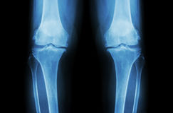 Osteoarthritis Knee ( OA Knee ). Film x-ray both knee ( front view ) show narrow joint space ( joint cartilage loss ) , osteophyte. Subchondral sclerosis Royalty Free Stock Images