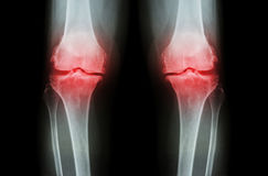 Osteoarthritis Knee ( OA Knee ). Film x-ray both knee ( front view ) show narrow joint space ( joint cartilage loss ) , osteophyte. Subchondral sclerosis Stock Photos