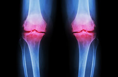 Osteoarthritis Knee ( OA Knee ). Film x-ray both knee ( front view ) show narrow joint space ( joint cartilage loss ) , osteophyte. Subchondral sclerosis Stock Image