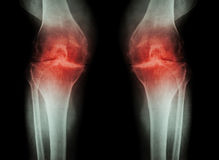 Osteoarthritis Knee ( OA Knee ) ( Film x-ray both knee with arthritis of knee joint : narrow knee joint space ) ( Medical and Scie Royalty Free Stock Image