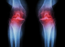 Osteoarthritis Knee ( OA Knee ) ( Film x-ray both knee with arthritis of knee joint : narrow knee joint space ) ( Medical and Scie Royalty Free Stock Photos