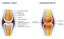 Osteoarthritis royalty free illustration