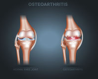 Osteoarthritis and normal joint anatomy Royalty Free Stock Image