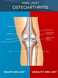 Osteoarthritis and normal joint Stock Photography