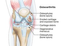 Free Osteoarthritis Of The Knee, Medical Accurate Illustration Stock Photos - 177595273