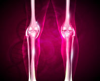 Osteoarthritis, painful joint and healthy joint Stock Images