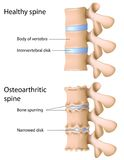 Osteoarthritis of the spine Stock Photography