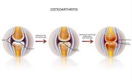 Osteoarthritis szczegółowa ilustracja ilustracja wektor