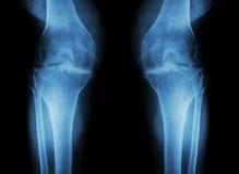 Osteoarthritisknä (OA-knä) (filmröntgenstrålen båda knäa med artrit av knäleden: smalt knäledutrymme) (läkarundersökningen och Sc royaltyfria foton